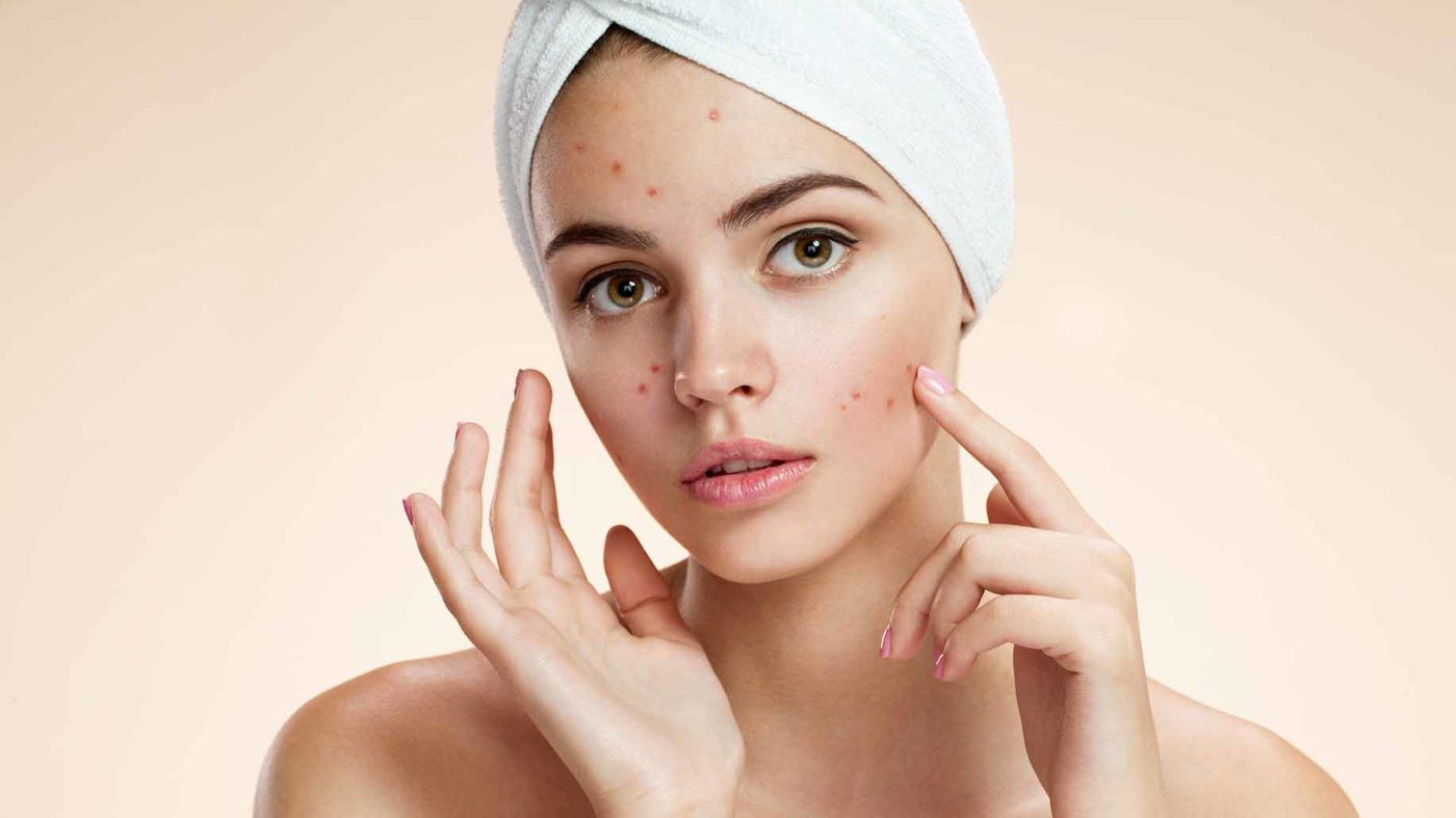 Top Natural Home Remedies To Treat Acne
