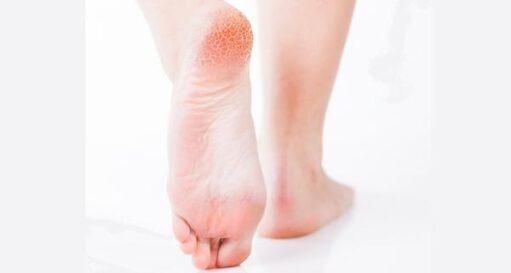 Top Remedies For Cracked Heels