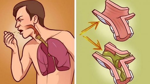 Top Ways To Relieve Chest Congestion