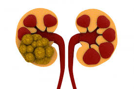 Suffering from Kidney Stones? Try These 6 Natural Remedies now!