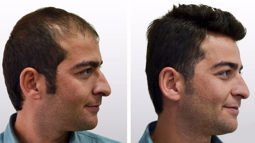 All about Hair Transplant!