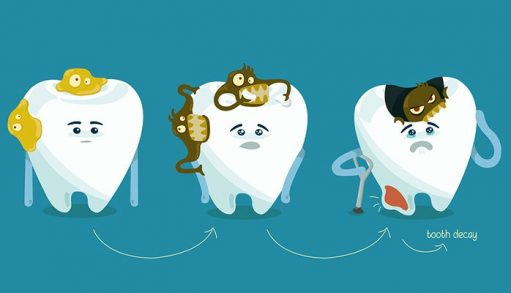 How to prevent dental decay
