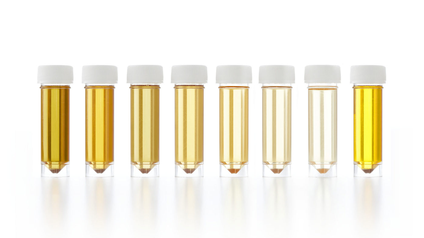 Your Urine Colour & Its Meaning in terms of current health!