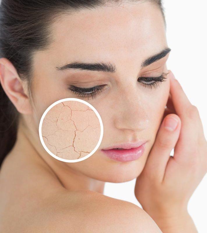 Top skin tips For Dry Skin In Winter